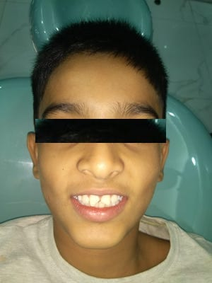 Patient with a history fractured incisors
